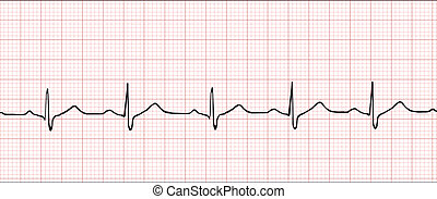 Electronic cardiogram illustration - Normal electronic...