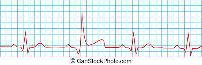 elektrokardiogramm, szív, Támad, ütés