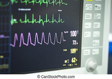 elektrokardiograph, in, klinikum, chirurgie