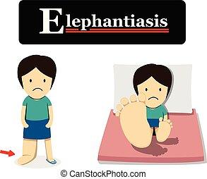 elephantiasis, dessin animé, vecteur, plat