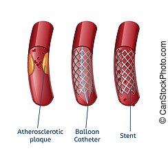eliminazione, realistico, aterosclerosi, presentazione