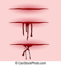 elvág, vér