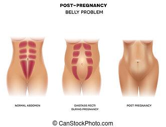 embarazo, cuerpo, hembra, antes, después, durante, embarazo