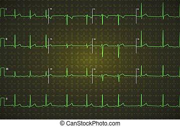emberi, Ábra, sötét, fényes, EKG, zöld, háttér, jellegzetes
