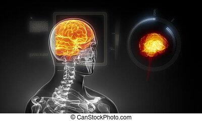 emberi agyonüt, orvosi röntgenkép, fürkész, alatt, l