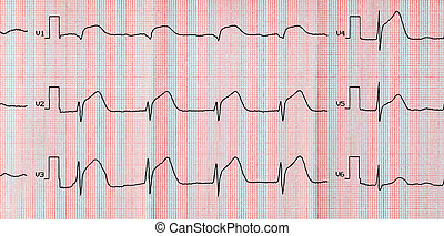 Emergency cardiology and intensive care. ECG with acute period macrofocal widespread anterior myocardial infarction