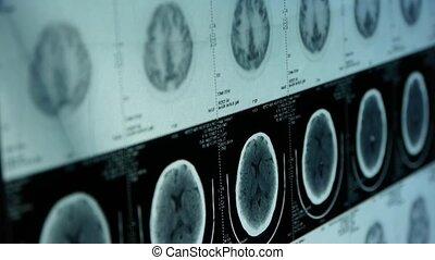 en mouvement, ct, tête, crâne, cerveau, balayage apprivoisé