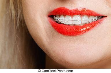 endireitar, rosto, higiene, parte, dentes, sorrindo, dente, menina, alça