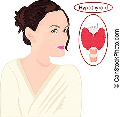 endokrin, goiter., ábra, disfunction, thyroid., megnagyobbított, vektor, háttér, fehér