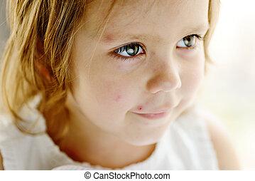 enfantqui commence à marcher, girl, à, varicelle