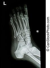 enkel, voet, beeld, röntgenstralen