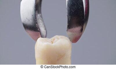 enlever, métal, forceps, dentaire, dent, faux, tir