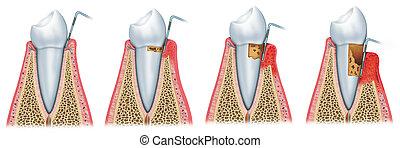 entwicklung, periodontitis