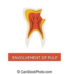 envolvement, 虫歯, 歯医者の, 病気, 口, 歯科医術, パルプ