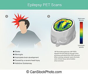 Epilepsy PET scans. The brain cells if concussion or ...