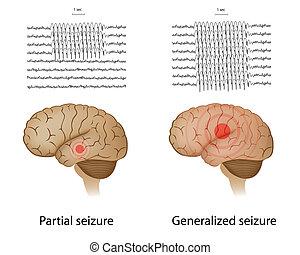 epilessia, parziale, generalized