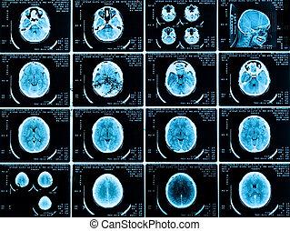 escáneres, de, el, cerebro