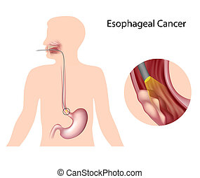 Esophageal cancer and diagnosis, eps10