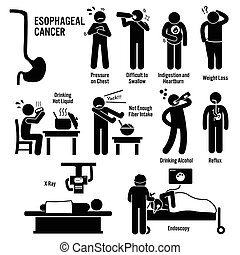 Set of illustrations for esophageal esophagus throat cancer disease which include the symptoms, causes, risk factors, and the diagnosis for the illness.