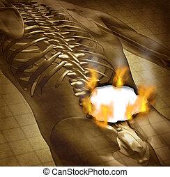 espalda, humano, doloroso