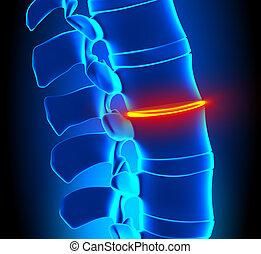 espina dorsal, disco, -, adelgazando, degeneración