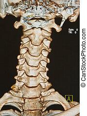 espina dorsal, esqueleto, debajo, c-t, radiografías, humano...