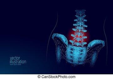 espina dorsal humana, cadera, lumbar, radiculitis, dolor, bajo, poly., geométrico, polygonal, partícula, triángulo, punto, línea, futuro, medicina, tecnología, azul, rojo, doloroso, área, vector, ilustración