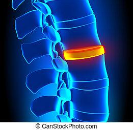espina dorsal, problema, disco, -, degeneración