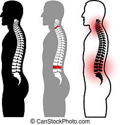 espina dorsal, siluetas, vector, humano
