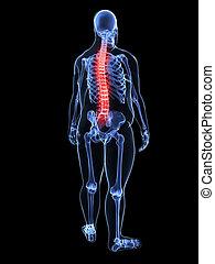 espina dorsal, sobrepeso, -, doloroso, hombre