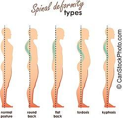 espinal, back., siluetas, enfermedades, lordosis, kyphosis, espalda, deformidad, vector, humano, redondo, spine., types., plano