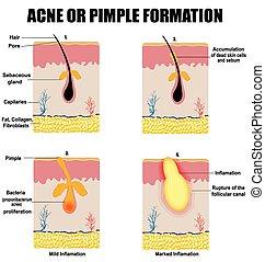 espinha, acne, formação, ou, pele