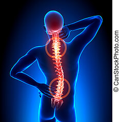 espinha, trauma, -, vértebras, dor