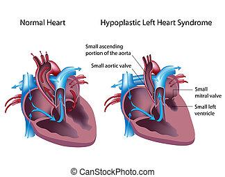 esquerda, hypoplastic, coração, síndrome