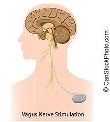 estímulo, nervio, vagus, terapia