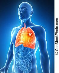 evidenziato, polmone, maschio, -, cancro
