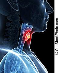 evidenziato, tiroide, cancro