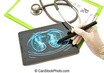 examen, tablet, arts, medisch, het kijken, borst, beeld, rontgen