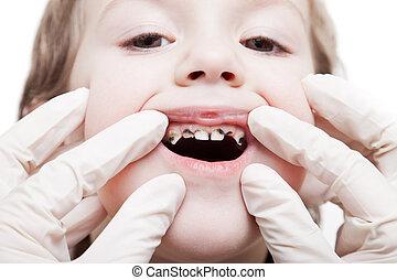 examinando, dentes, cariado, decadência