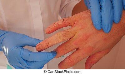 examiner, patient, docteur, dermite, mains, closeup.
