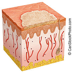 basal cell carcinoma - example of a basal cell carcinoma in ...