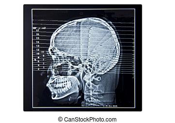 exploración del cerebro, película