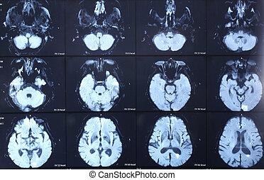 exploración del ct, cerebro