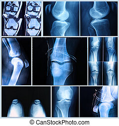 exploración, médico, mri, rodilla, exam:, radiografía