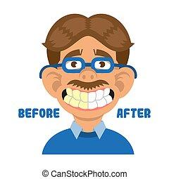 exposition, après, propre, dents, homme, avant