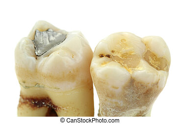 Extracted teeth with details of caries, fillings and tartar...