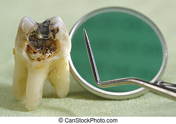 extracted tooth with dental caries