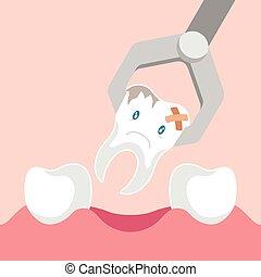 extraktion, dental, förlossningstång, tand