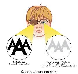 eye), amblyopia, (lazy