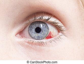 Eye - close up of a bloodshot eye damage by an injury .